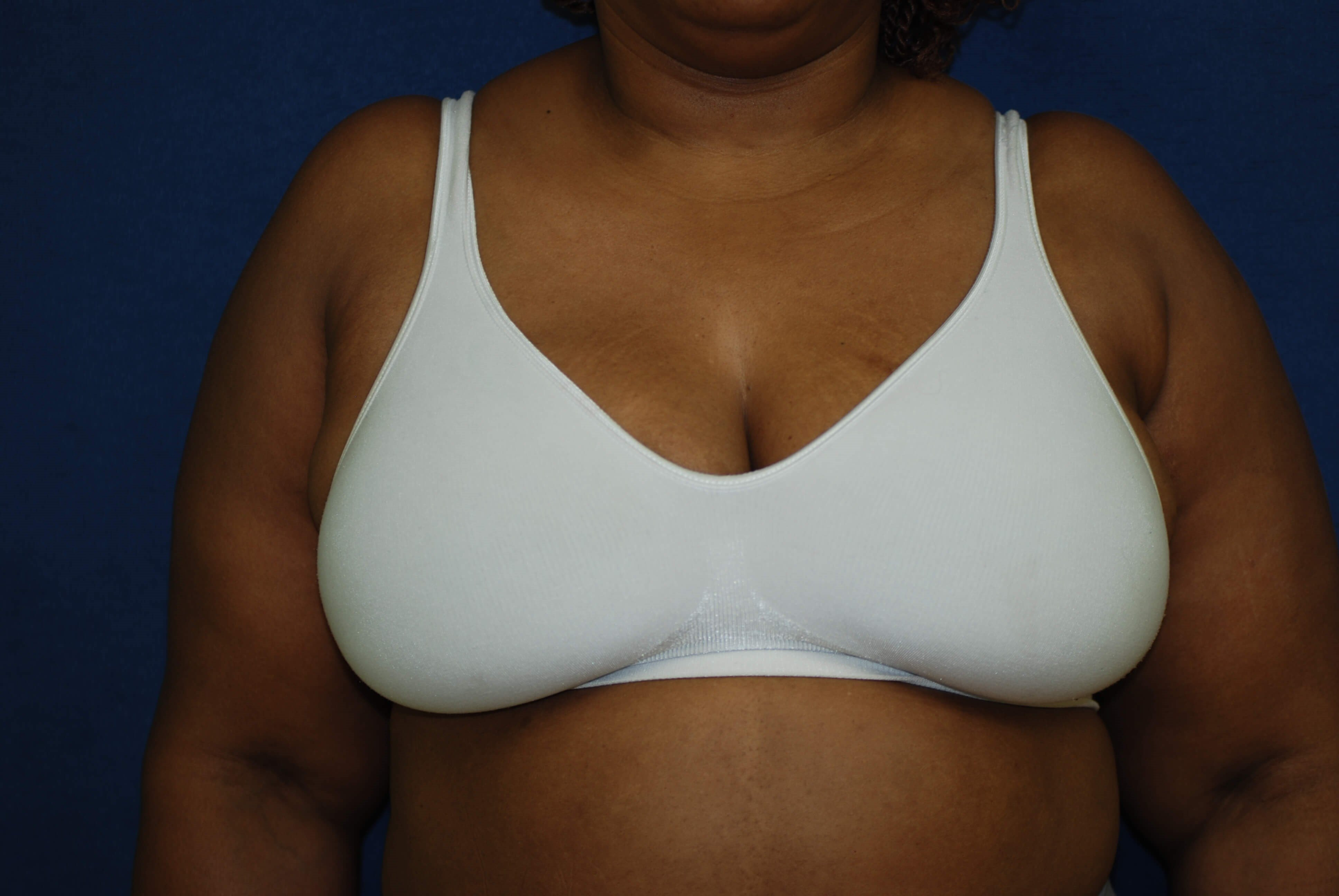 Completed In-Bra After in-bra