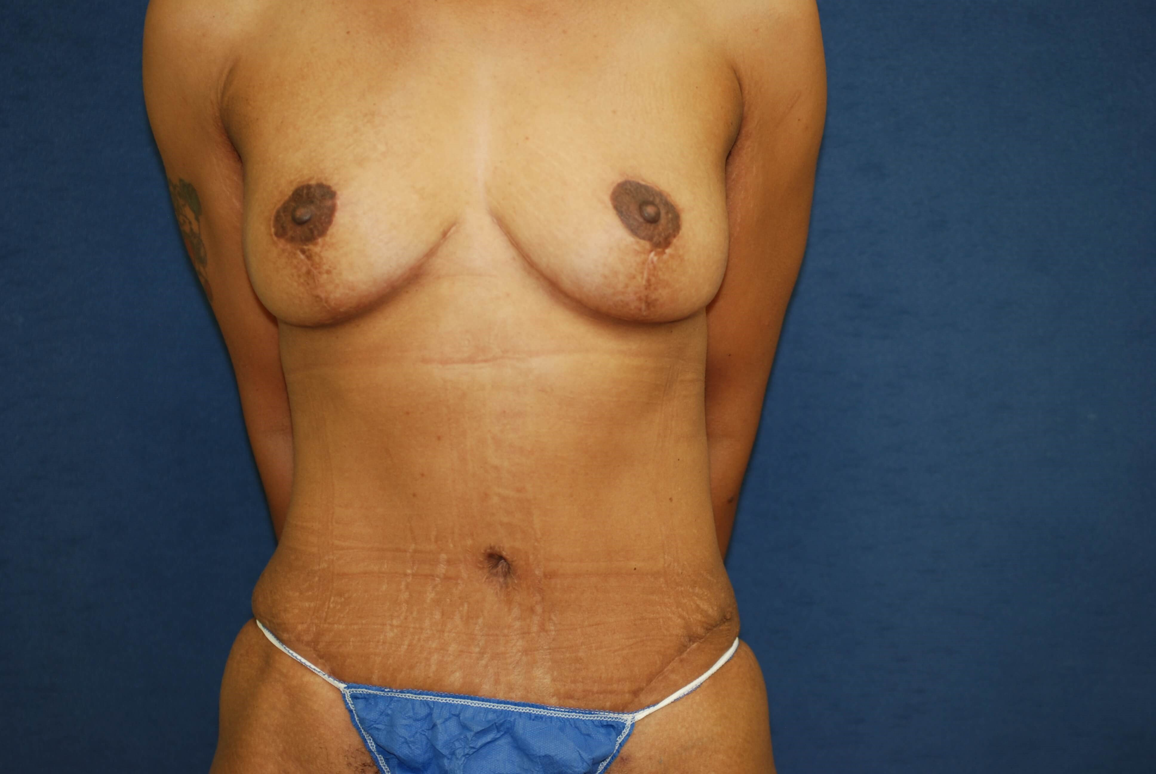 Front View Breasts and Abdomen After