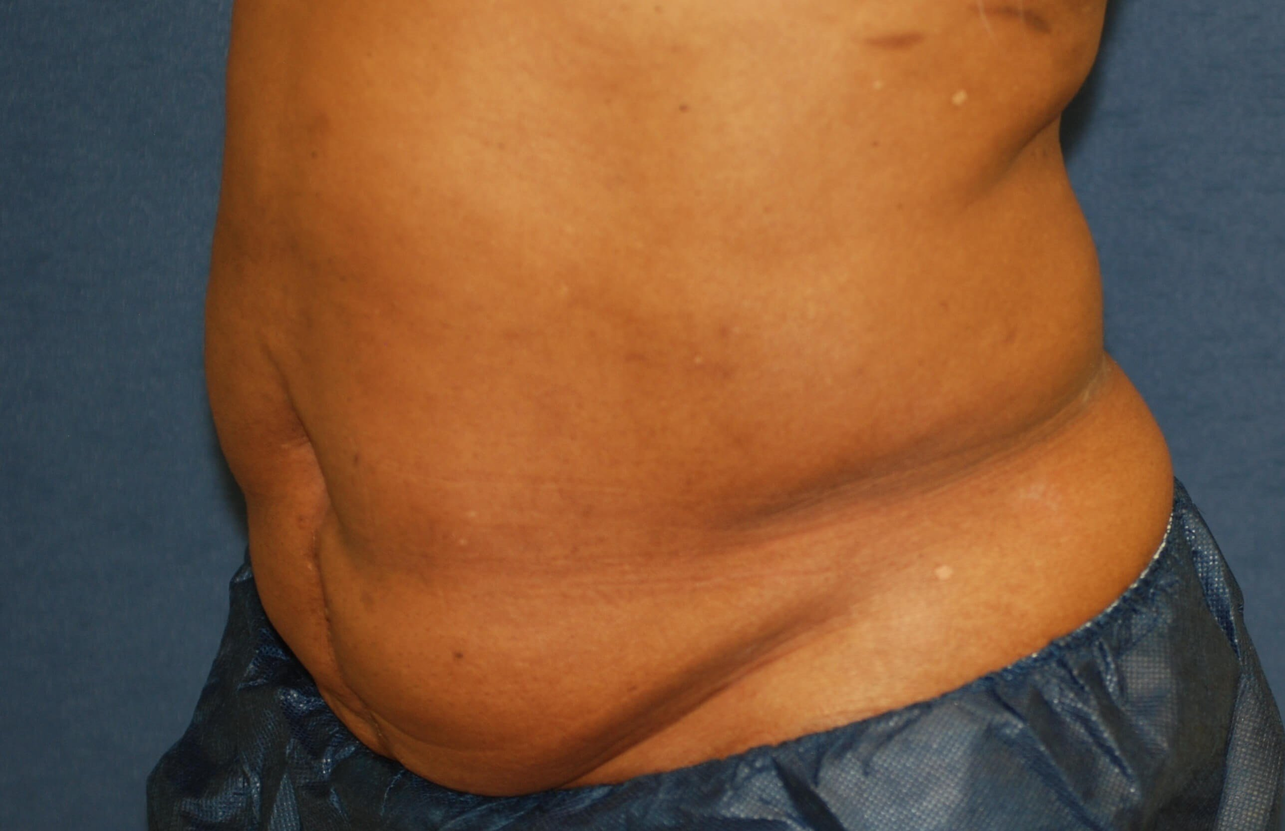Left Oblique View After