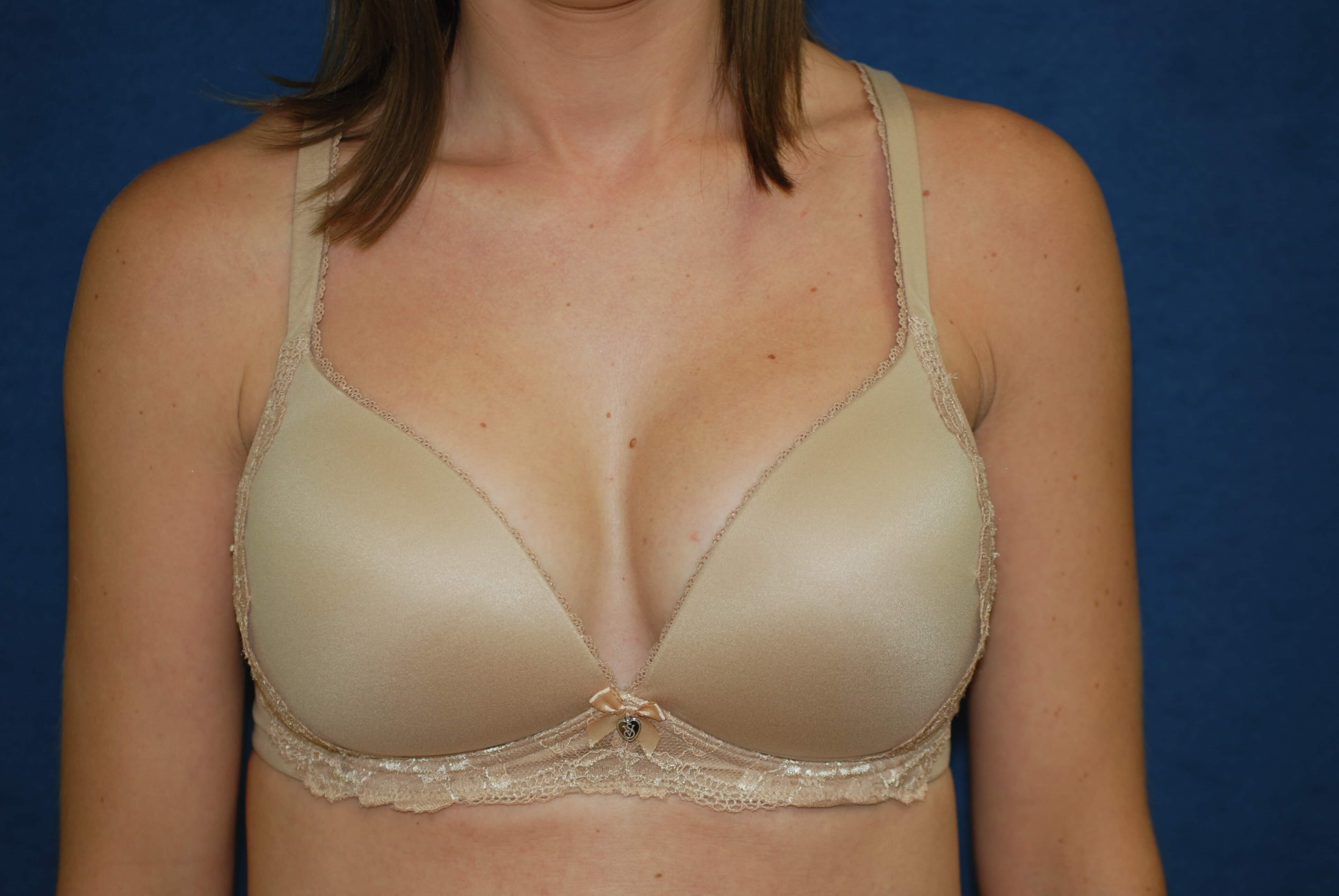 With Bra After- front view in bra