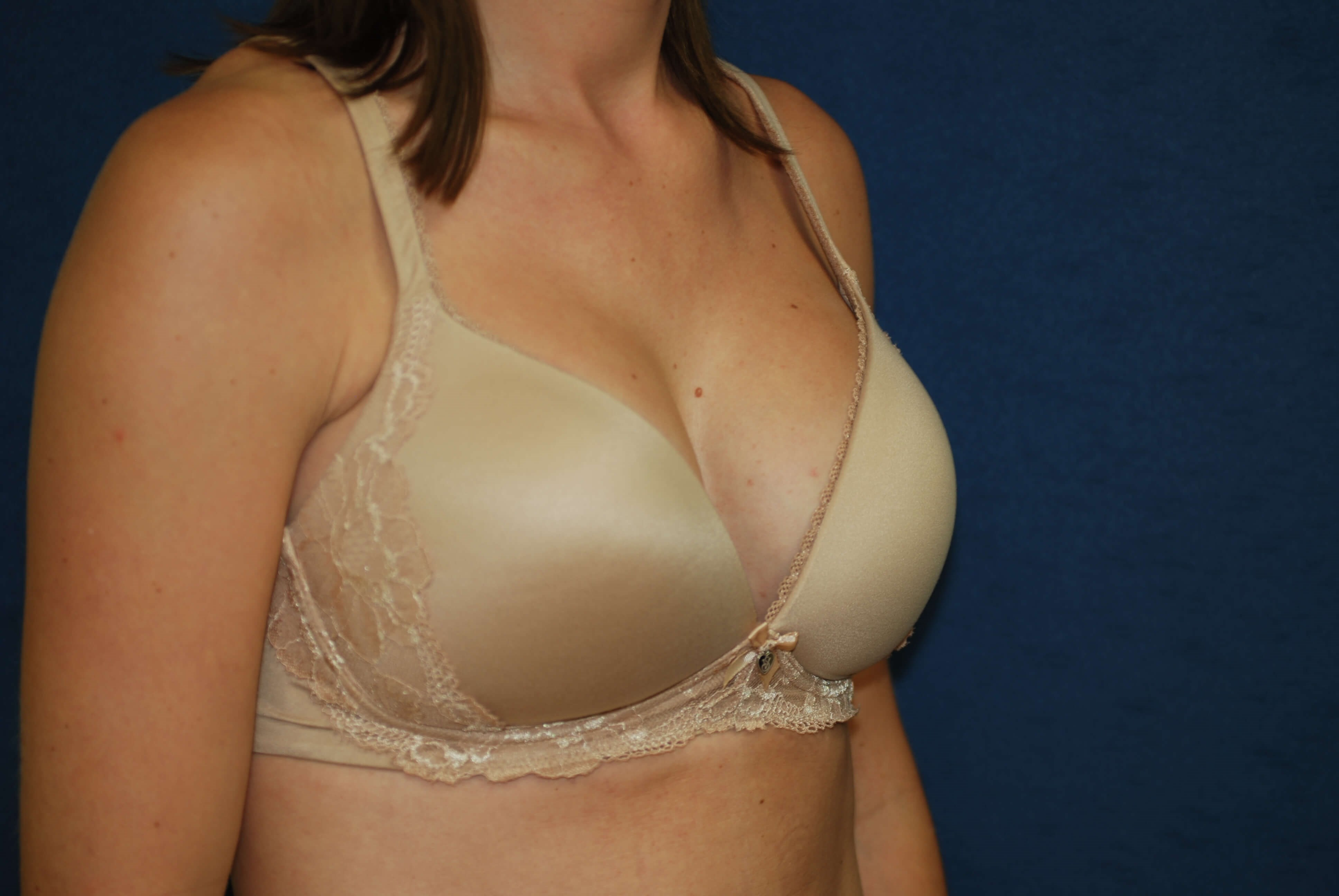 With Bra After- oblique view in bra