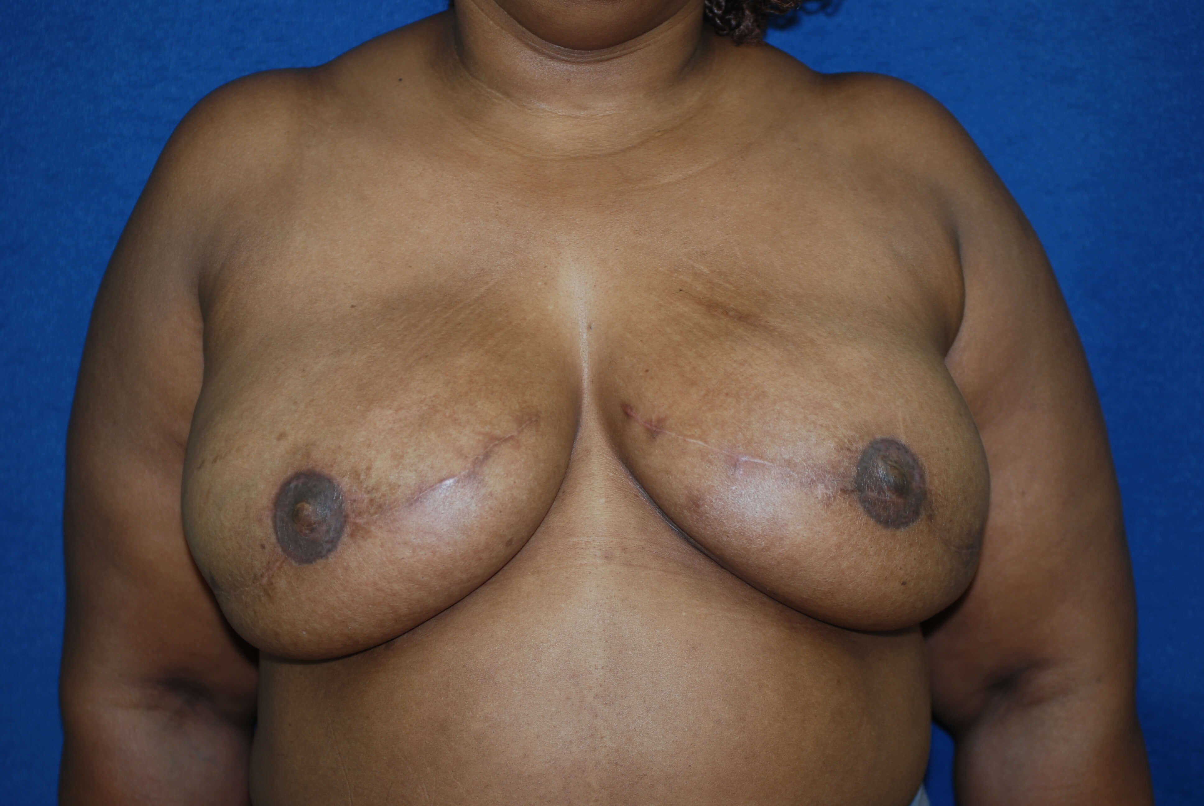 Pre/Post Nipple Reconstruction After