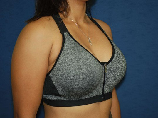 In Bra After After-Oblique View