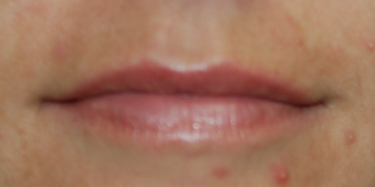 Lip Before