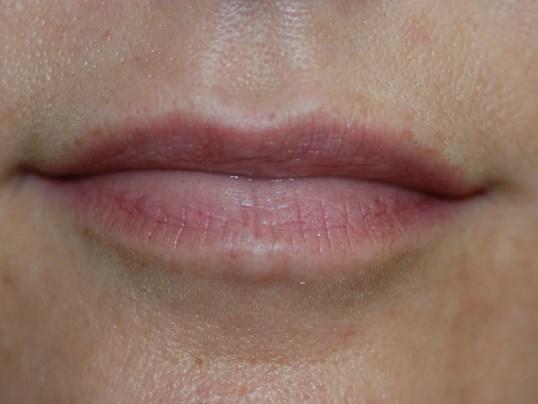 Restylane Silk Lips