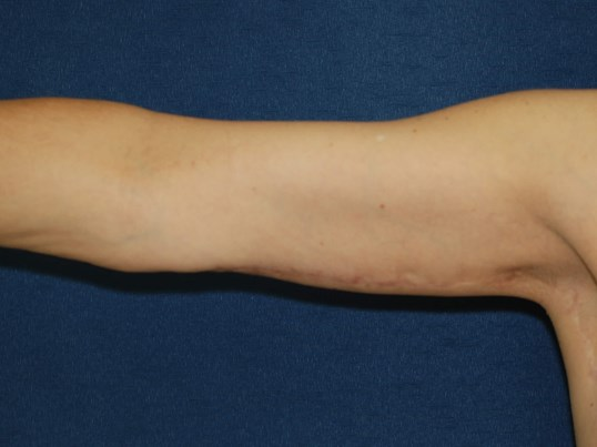 Front View-Right Arm After