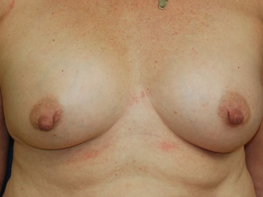 Front View 7 months post op After