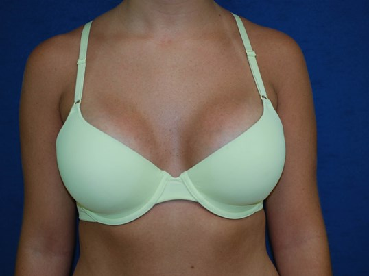Patient In Bra After